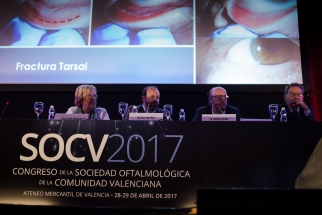 SESION Controversias en oculoplastia-4